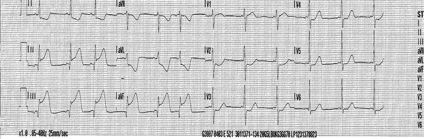 Ambulance ECG