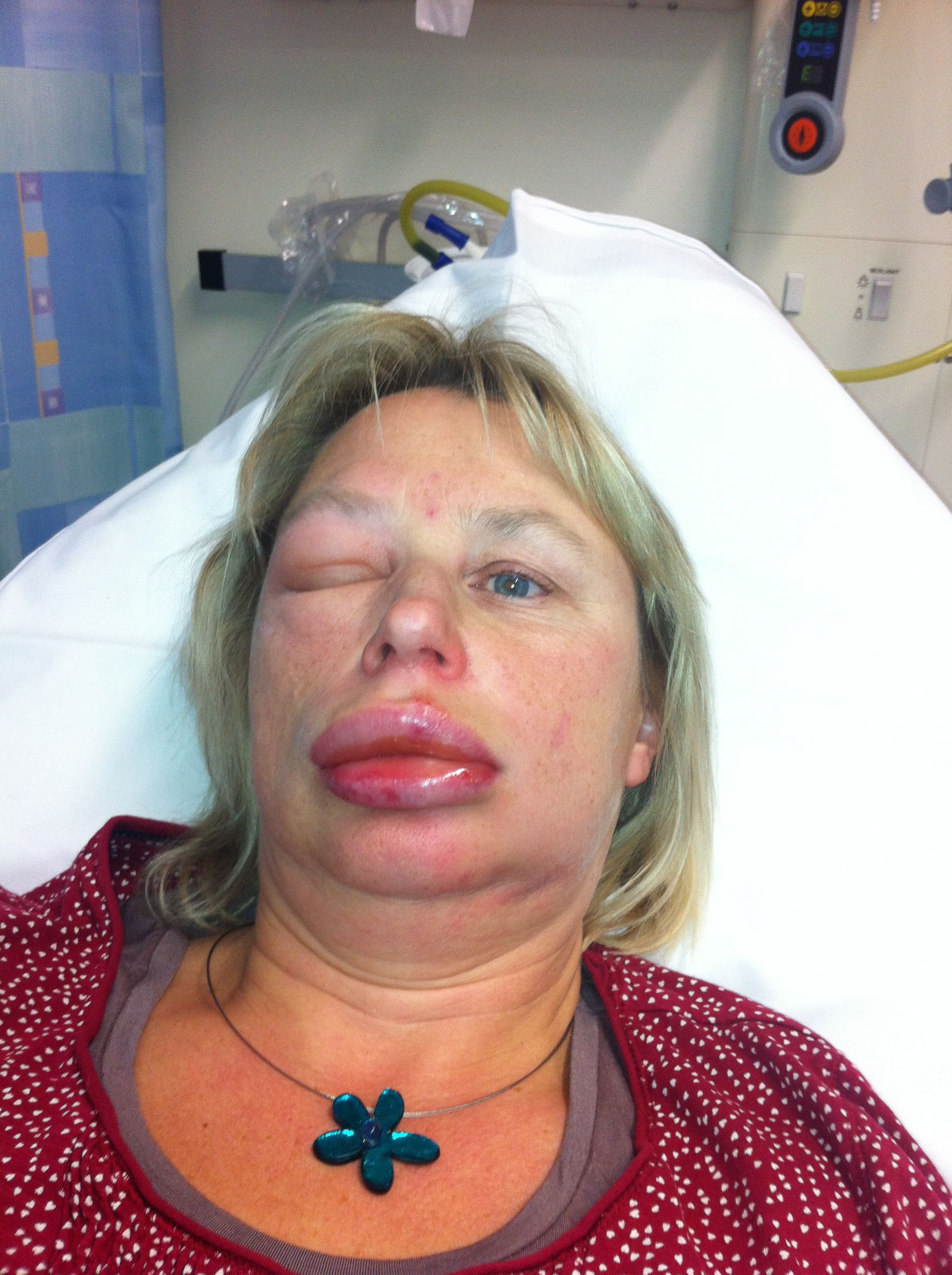 ace inhibitor angioedema steroids