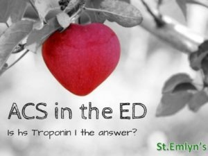 JC: High sensitivity Troponin I on presentation. Is it enough to rule out ACS? St.Emlyn's