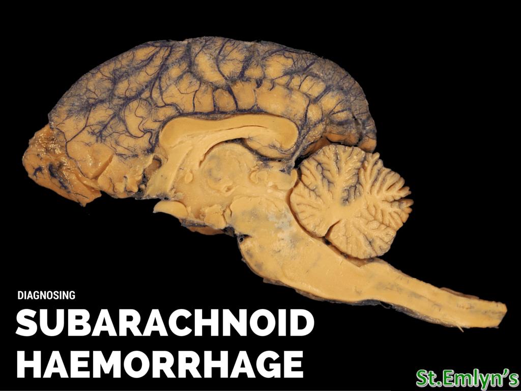 Let S Talk About Subarachnoid Haemorrhage St Emlyn S